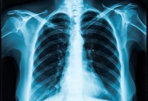 Synthetic cannabinoids linked to increased hospitalizations and deaths in older adults with COPD